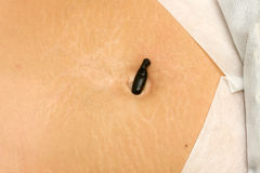 Blood sucking leech on the stomach Stock Images