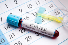 Blood test for analysis of PSA stock images