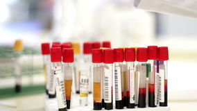 Blood test tubes being analyzed and interchanged by a laboratory worker stock video