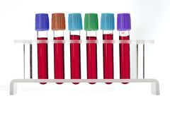 Blood test tubes in glass rack Stock Photos