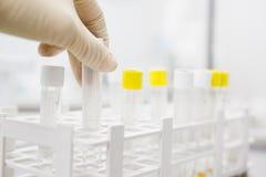 Blood testing lab Stock Photo