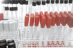 Blood testing in laboratory Royalty Free Stock Photography