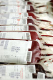 Blood Transfusion Stock Photo