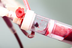 Blood transfusion. Stock Photo