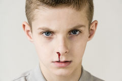 Blood trickles from nose of male child on grey Royalty Free Stock Photos