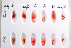 Blood type test. Real manual blood type test Stock Photos