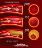 Blood Vector Image Stock Photo