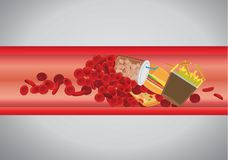 Blood vessel is blocked by hamburger and fast food. Concept illustration about danger of Cholesterol and fat Stock Image