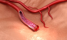 Blood vessel sliced macro with erythrocytes Stock Images