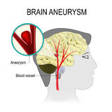 Blood vessels in the brain with aneurysm Stock Photo