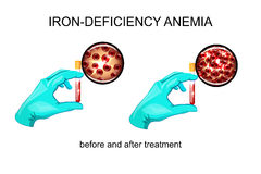 Blood in vitro. red blood cells for iron deficiency anemia Stock Photography