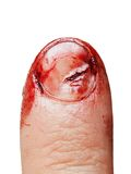 Blood wound finger nail Stock Images