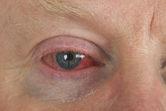 Bloodshot eye Royalty Free Stock Image