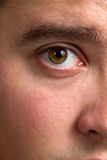 Bloodshot Eye Royalty Free Stock Photos