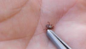 Bloodsucking Insekt scherflein Insekt auf einer menschlichen Palme liegt auf seiner Rückseite Zeckengriffpinzette stock footage