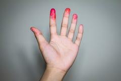 Bloody en los fingeres Foto de archivo