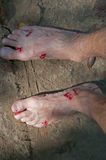 Bloody feet Royalty Free Stock Image