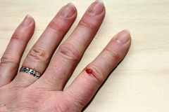 Bloody injuries to the finger of a woman Royalty Free Stock Photos