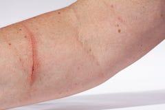 A bloody injury Stock Image