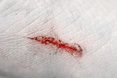 Bloody scratch closeup. Extreme closeup of bloody, dirty scratch on skin Stock Images