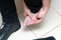 Bloody terrible blister on human feet with new black leather shoes laying around royalty free stock photo