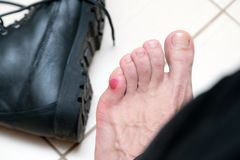 Bloody terrible blister on human feet with new black leather shoes laying around stock image