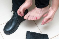 Bloody terrible blister on human feet with new black leather shoes laying around. Wet bloody painful skin on man foot with plaster. Painful wound on mans feet royalty free stock images
