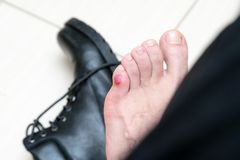 Bloody terrible blister on human feet with new black leather shoes laying around. Wet bloody painful skin on man foot with plaster. Painful wound on mans feet royalty free stock image