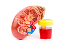 Bloody urine and kidney Royalty Free Stock Photo
