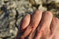 Bloody wound on his left hand Royalty Free Stock Photos
