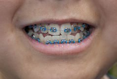 Blue Braces Royalty Free Stock Image