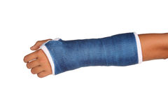 Blue cast. On an arm of a child isolated on white background Stock Photography