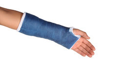 Blue cast. On an arm of a child isolated on white background Royalty Free Stock Photo