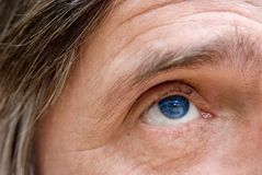 Blue eye looking up. Mature man one blue eye Stock Photo