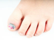 Blue hallux nail after injury. Closeup of a little girls foot with blue nail on the hallux nail Royalty Free Stock Photos