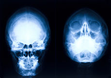Head xray Stock Photo