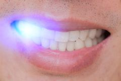 LED laser blue light bleach teeth whitening in male. Blue LED laser light bleach teeth whitening dental treatment concept stock images