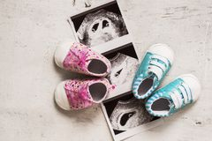 Blue and pink booties next to baby photos with ultrasound in 4th week of pregnancy. Twins. Son and daughter. Selective focus. Blue and pink booties next to baby stock photos
