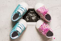 Blue and pink booties next to baby photos with ultrasound in the 20th week of pregnancy. Son or daughter. Selective focus. Blue and pink booties next to baby royalty free stock images