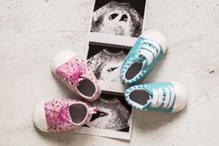 Blue and pink booties next to baby photos with ultrasound in 4th week of pregnancy. Twins. Son and daughter. Selective focus. Blue and pink booties next to baby stock photo