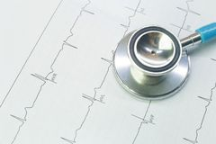 Blue stethoscopes and  Electrocardiography  chart close up image. A Blue stethoscopes and  Electrocardiography  chart close up image stock photography