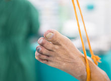 Blue toe syndrome stock photo