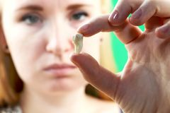 Blurry pose of a woman with toothache and a hand holding the extracted tooth, hocus on the hand. A tooth is in the hand of a woman after surgery to remove it stock photos