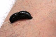 Blut, das Blutegel auf Mannfahrwerkbein saugt Stockfotos