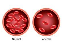 Blut des gesunden Menschen und des Blutgefäßes mit Anämie stock abbildung