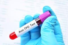 Blutbeispielrohr für anti--TPO Test lizenzfreie stockfotos