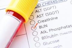 Blutbeispielrohr für BRÖTCHEN-Test Lizenzfreie Stockbilder