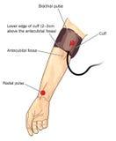 Blutdruckmanschette auf Arm Stockbilder