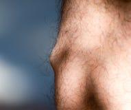 Blutgerinnsel in den Adern des Beines Lizenzfreie Stockbilder