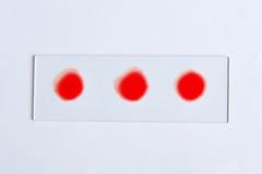 Blutgruppeprüfung lizenzfreie stockfotografie